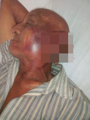 La víctima, de 85 años, se recupera en el Hospital Universitario del Caribe.