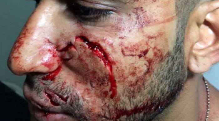 Juez deja en libertad a taxista que propinó heridas en el rostro de un usuario