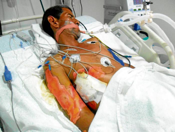 Indagación preliminar por caso de quemado en la UCI de la clínica ...