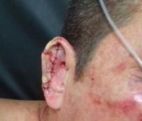 Gustavo Quintero, taxista agredido en atraco en motel junto a la variante Mamonal Turbaco.