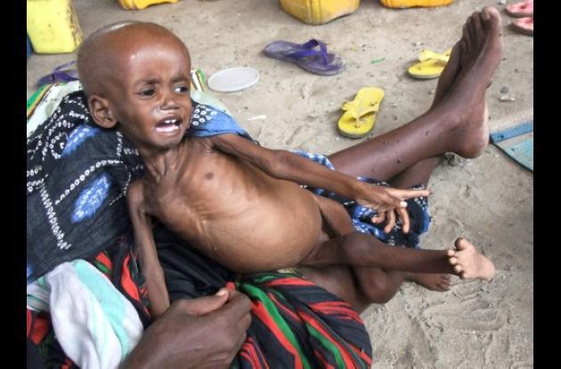 Niños desnutridos por crisis de hambre en Somalia