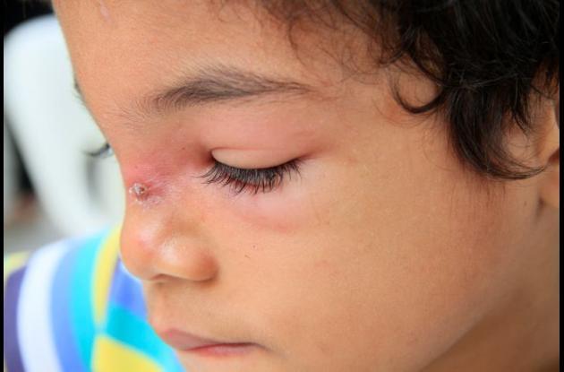 Niño infectado por mosquito