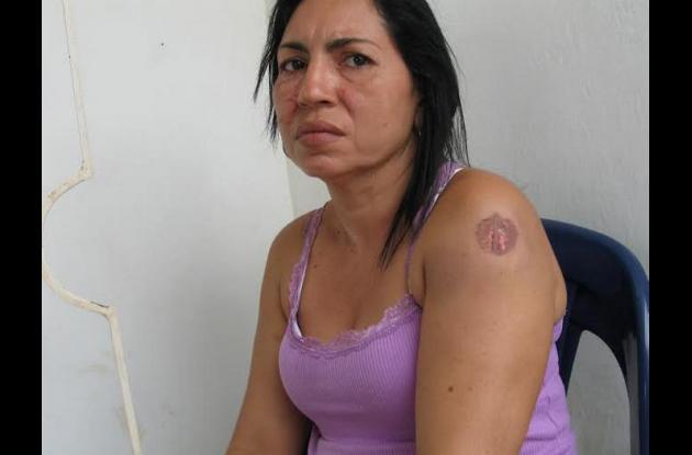 Maisle Madera, mujer que asegura que su exmarido y la mujer de este le dieron paliza en Zambrano, Bolívar.