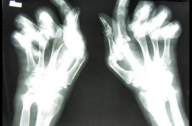 estudio sobre la artritis