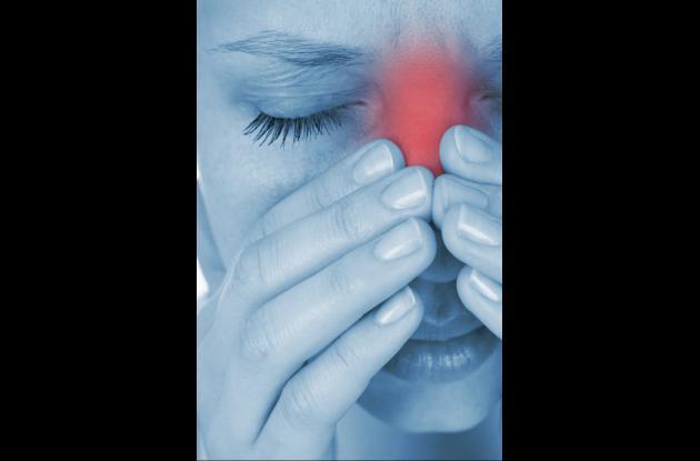 Dolor nasal, hemorragias, fiebre alta y escalofríos son síntomas que indican la necesidad de consultar a su médico por problemas con su nariz.