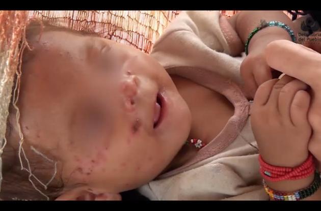 Los menores de edad con desnutrición habitan en diferentes resguardos y asentamientos.