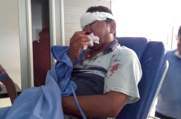 Dairo Luis Acevedo Bohórquez, presenta trauma craneoencefálico.
