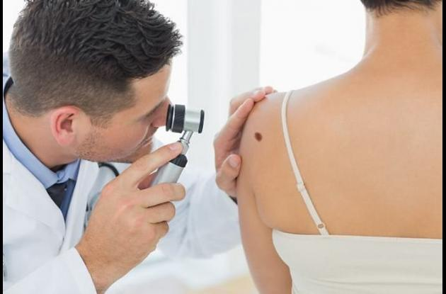 Dermatoscopio