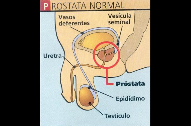 La prevención es la clave en el cáncer de próstata.