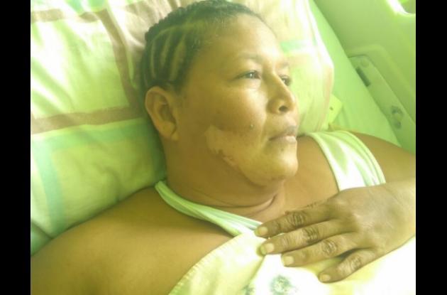Yacelín Ortega Escobar está internada en el Hospital Universitario del Caribe. Una vecina le echó agua caliente y sufrió quemaduras. Ocurrió en Fredonia.