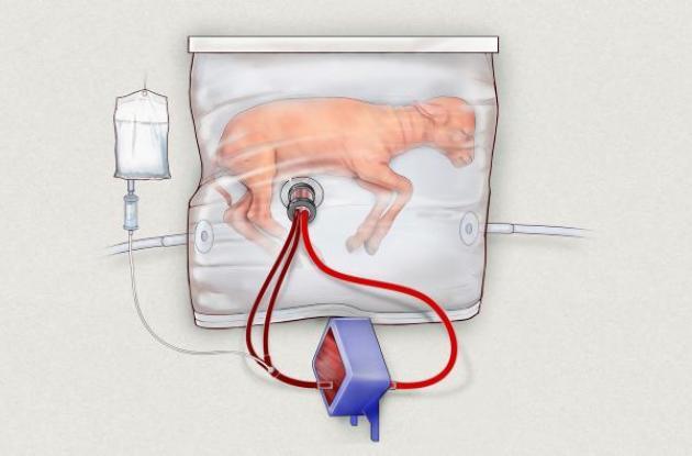 Dibujo que muestra la forma que tendrá el útero artificial.