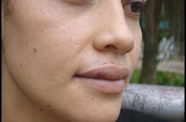 Cathy Hernández Hoyos, fue incapacitada por 12 días tras recibir los golpes en su cara.