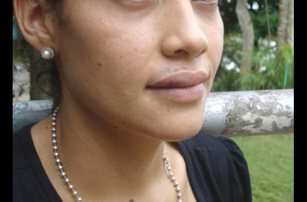 Cathy Hernández Hoyos, estudiante  golpeada.
