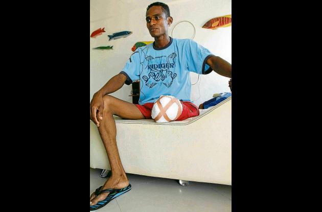 Luis González Santoya, de 35 años, perdió su pierna izquierda