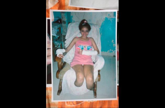 mujer de 20 años amputada de sus piernas y dos dedos de la mano