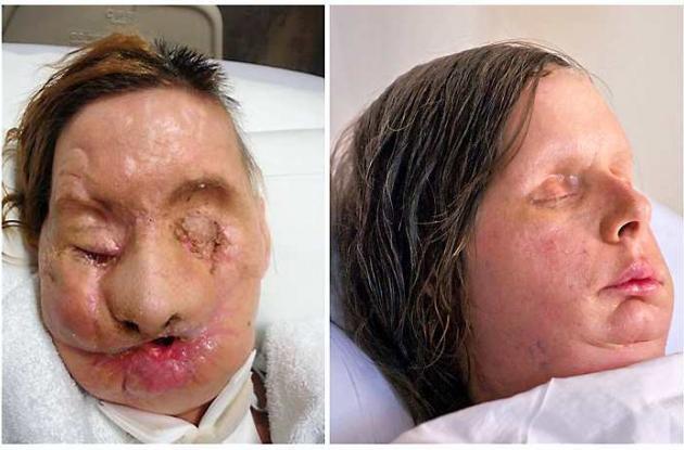 Charla Nash, después del trasplante de rostro.