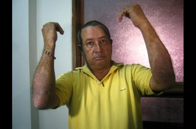 Emilio Soto sufre de cáncer en la piel.