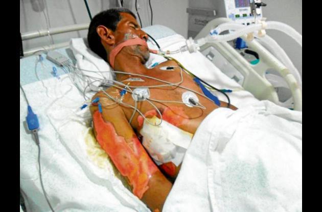Carlos Urango, paciente quemado.