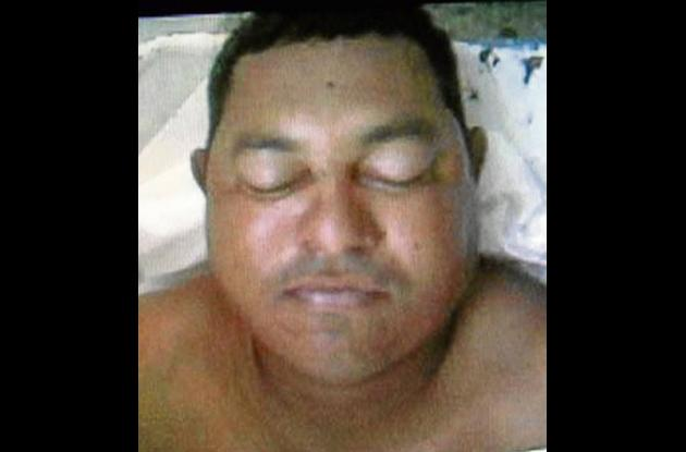Wilson Antonio Guzmán Sangón, ultimado a bala.