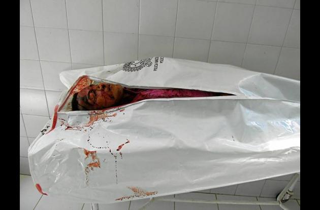 El cuerpo sin vida de esta persona fue trasladado a la morgue de Sahagún