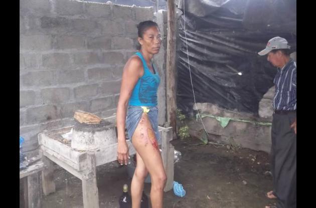 Alondra Seña Puertas, persona que fue quemada con agua caliente