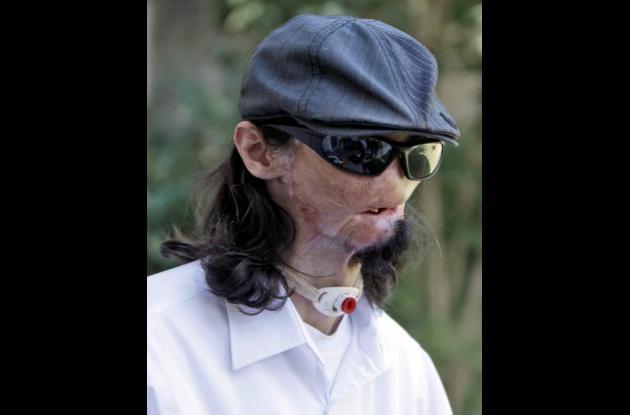 primer transplante total de cara