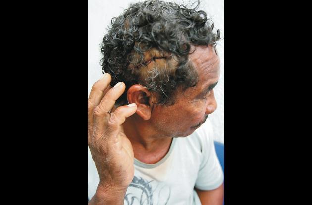 Dagoberto Lara Blanco muestra las heridas que le ocasionaron las pedradas que re