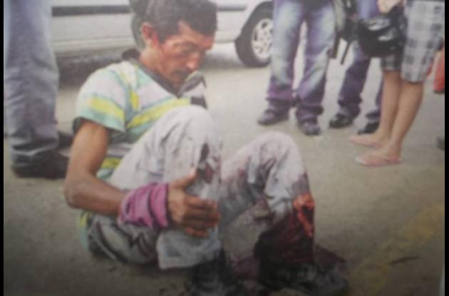 Alfonso Pastrana Lobo, quedó mal herido en el accidente registrado en Montería.