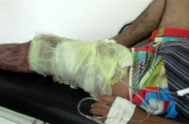 El hombre sufrió quemaduras en la pierna izquierda y los testículos.