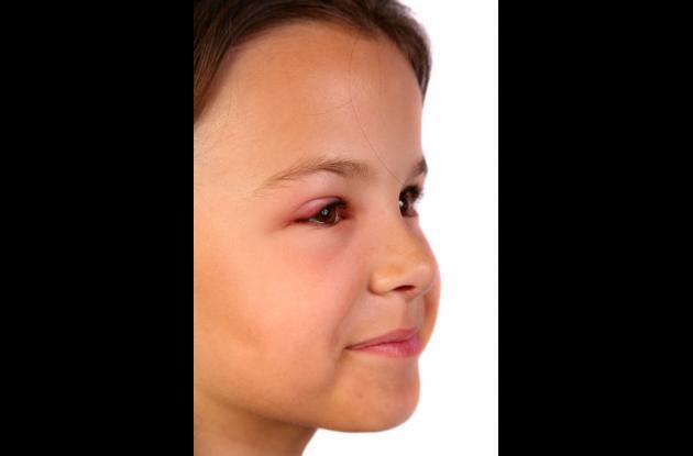 Otitis Conjuntivitis