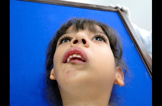 isabella necesita una cirugía en su rostro
