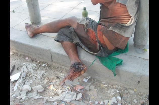 Cartagena indigente