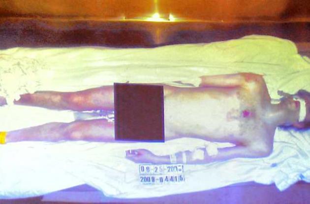 La imagen del cuerpo sin vida del Rey del Pop fue divulgada durante el juicio