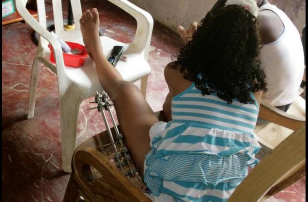 Angélica, de 12 años, aún no puede caminar.