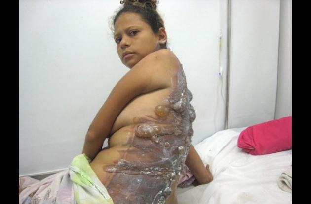 Mujer quemada en Barranquilla