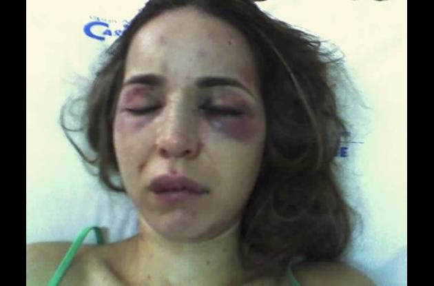 Lizzette Ochoa fue brutalmente golpeada por su esposo Rafael Dangond Lacouture d