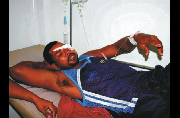 Óscar Martínez Páez perdió su ojo izquierdo