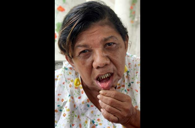Libia Teresa Álvarez de Cardona, lesionada.