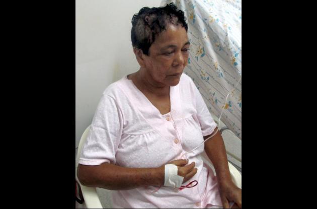 Ana Coronado, fue atendida en el Hospital Nuestra Señora de Las Mercedes