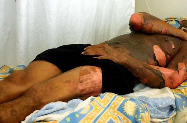 Wilberto Ruiz Salazar quemado por su mujer