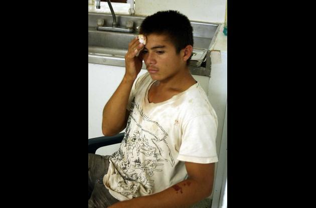 Elvis Danubis Hurtado Bautista, herido.