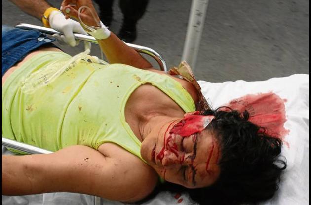 Noriela Montoya Présiga, deberá ser operada