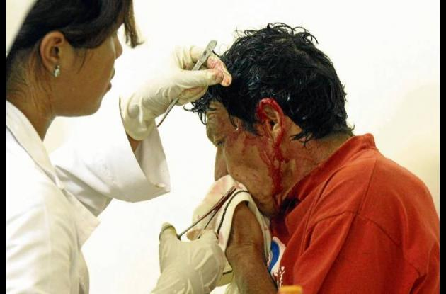 Rafael Cecilio Mendoza, minero herido tras caer de cabeza de plataforma