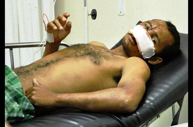 Domar Mendoza Ávila perdió la nariz al accidentarse la moto en que viajaba