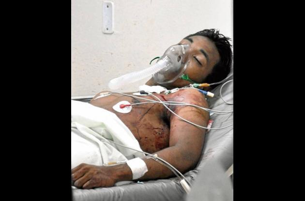 """Alias """"El Calé"""" fue herido en los mismos hechos en que murió Bairon Gutiérrez"""