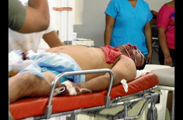 Francisco Beleño sufrió fuertes golpes en la cabeza y traumatismo facial