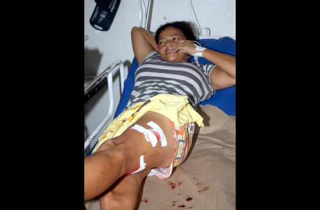 Maribel Jorge, herida con arma de fuego en la pierna izquierda, se recupera en e