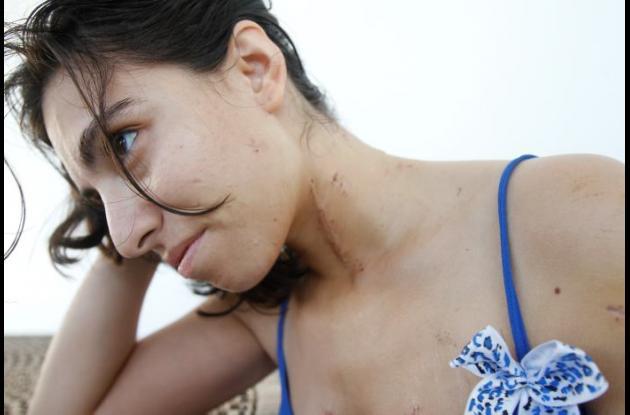 Jessica Paz Soldán, agredida en El Pedregal
