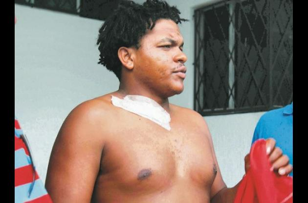 Javier Pérez Mancilla fue atacado por un delincuente que se ocasionó una herida