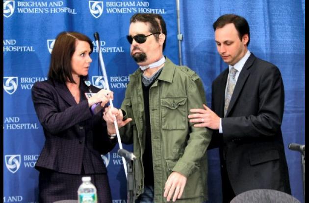 Presentan a hombre que recibió trasplante de cara